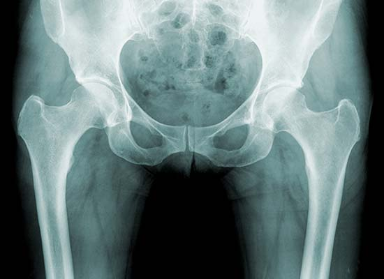 Joint Replacement Silicon Valley Medical Group 2 - Joint Replacement