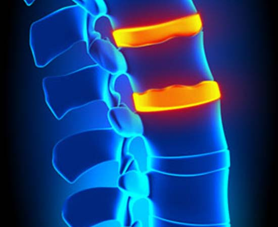 Laser Spine Surgery Silicon Valley Medical Group 2 - Laser Spine Surgery