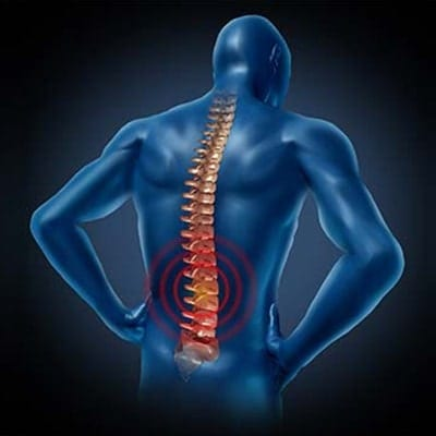 Spinal-Cord-Stimulation-Silicon-Valley-Medical-Group-min